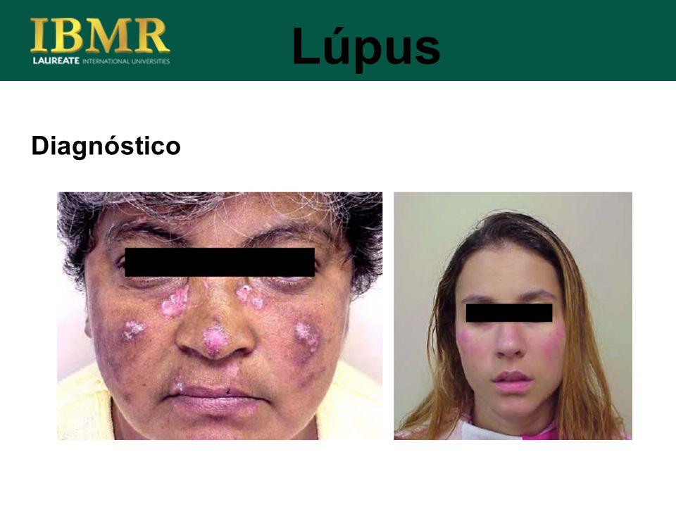 Lúpus Diagnóstico