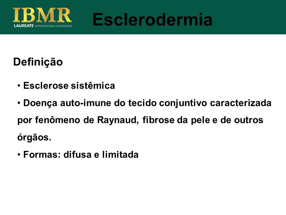 Esclerodermia Definição Esclerose sistêmica
