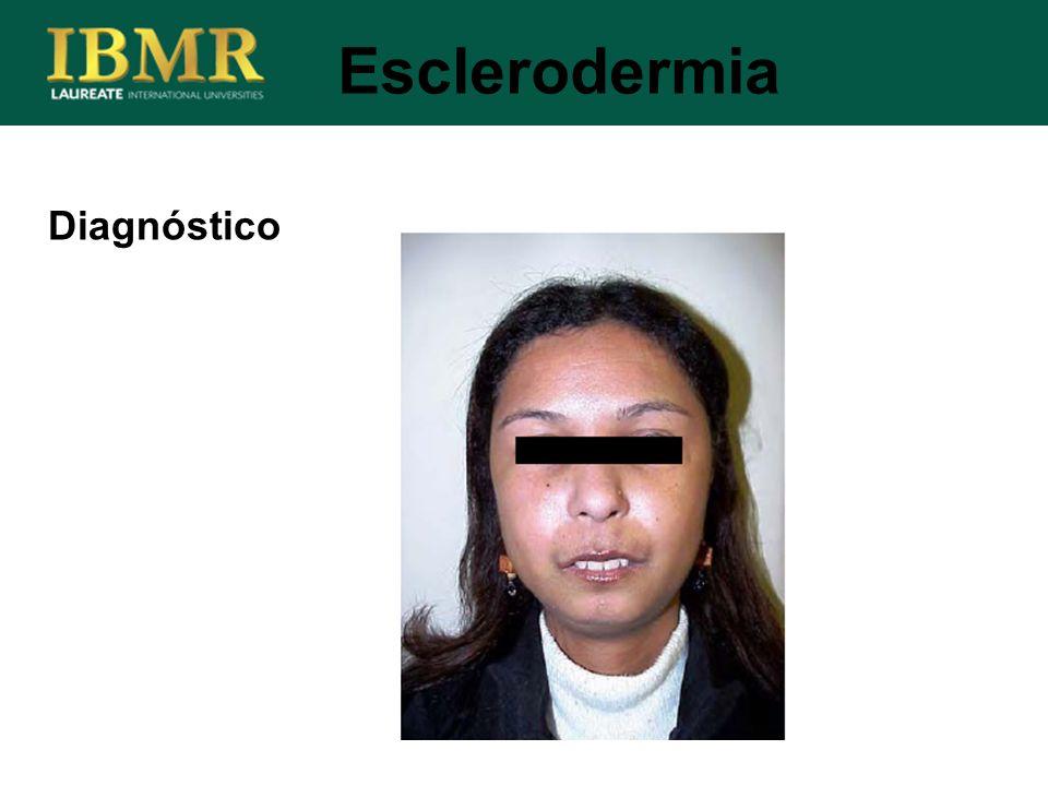 Esclerodermia Diagnóstico