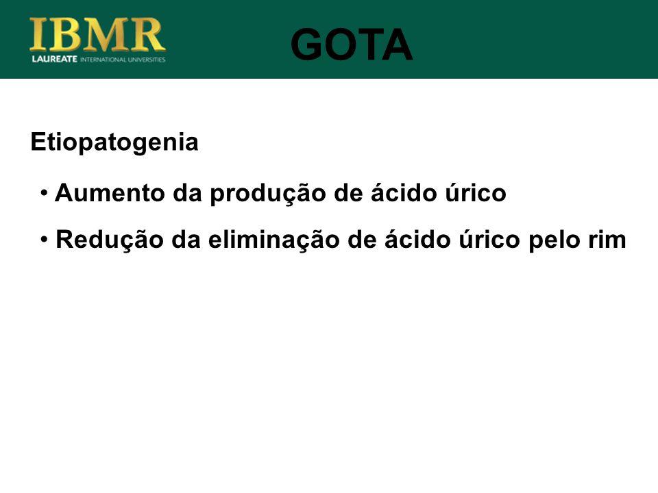 GOTA Etiopatogenia Aumento da produção de ácido úrico