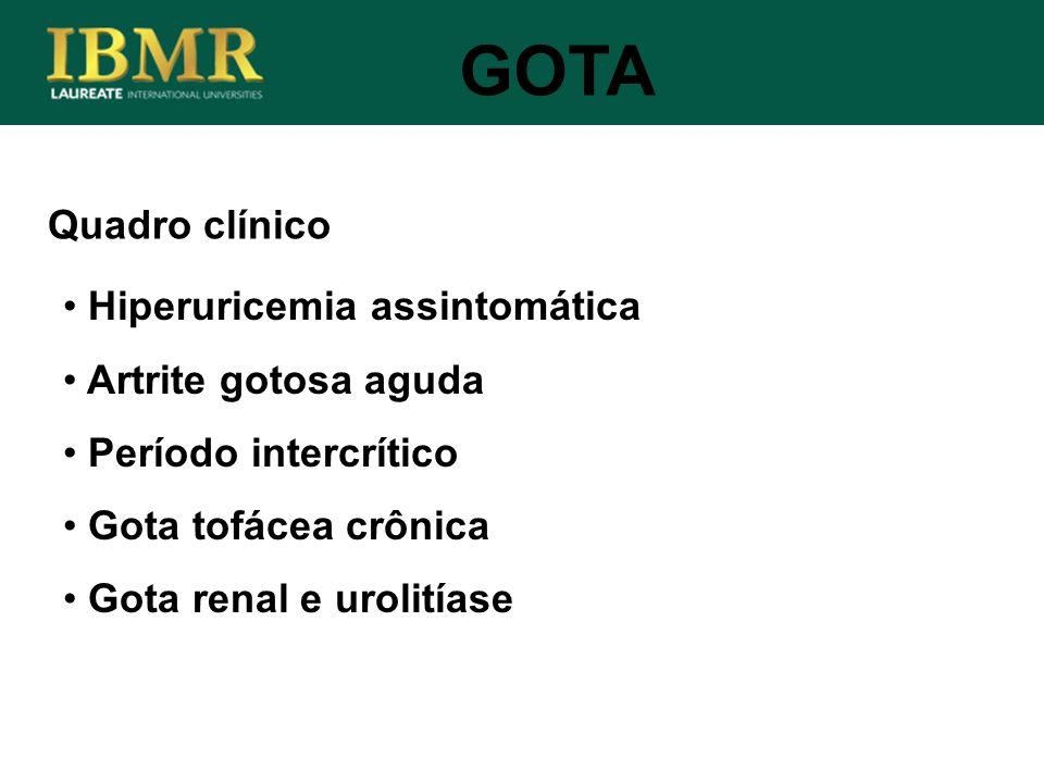 GOTA Quadro clínico Hiperuricemia assintomática Artrite gotosa aguda