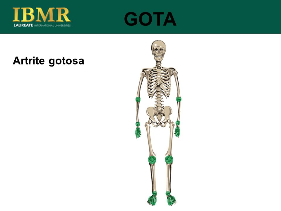 GOTA Artrite gotosa