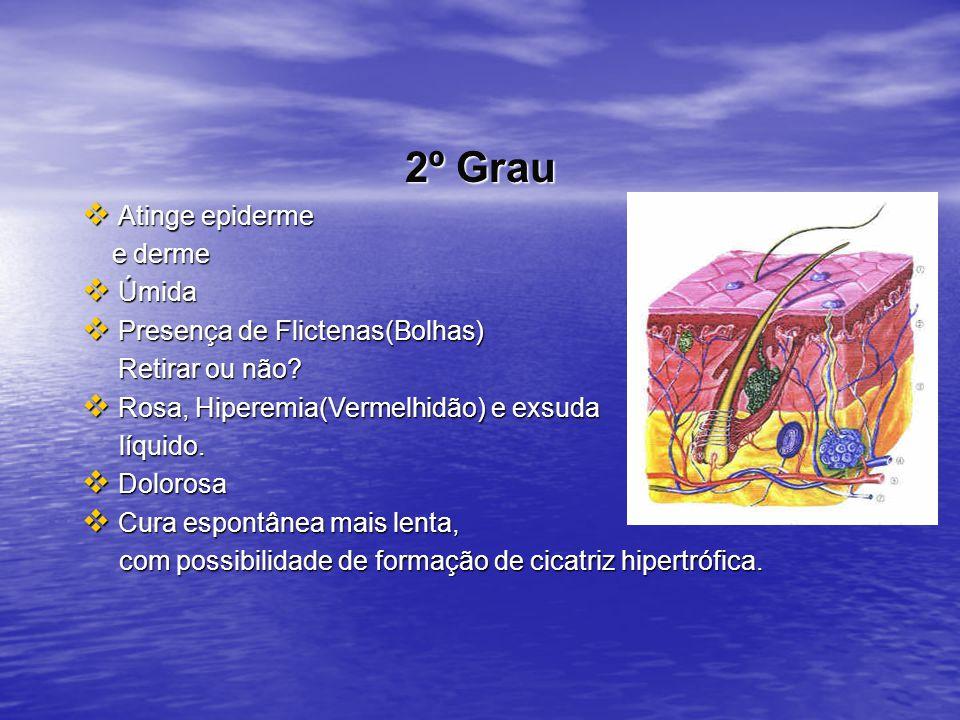 2º Grau Atinge epiderme e derme Úmida Presença de Flictenas(Bolhas)