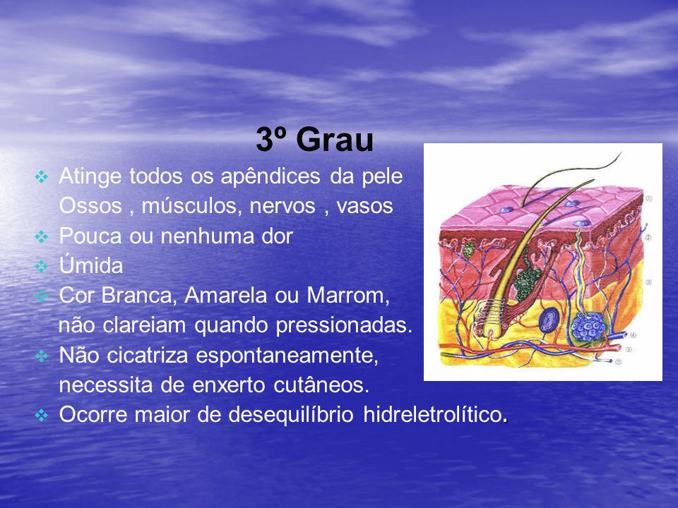 3º Grau Atinge todos os apêndices da pele