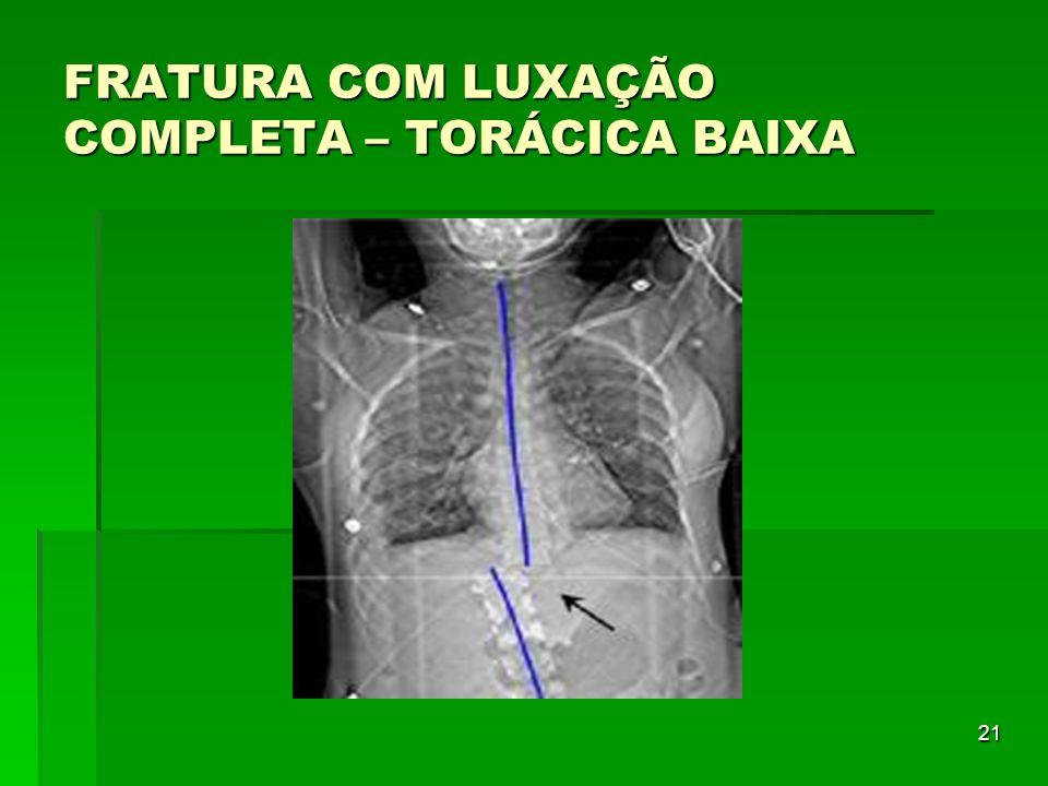 FRATURA COM LUXAÇÃO COMPLETA – TORÁCICA BAIXA