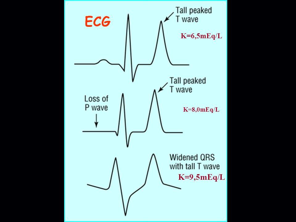 ECG K=6,5mEq/L K=8,0mEq/L K=9,5mEq/L