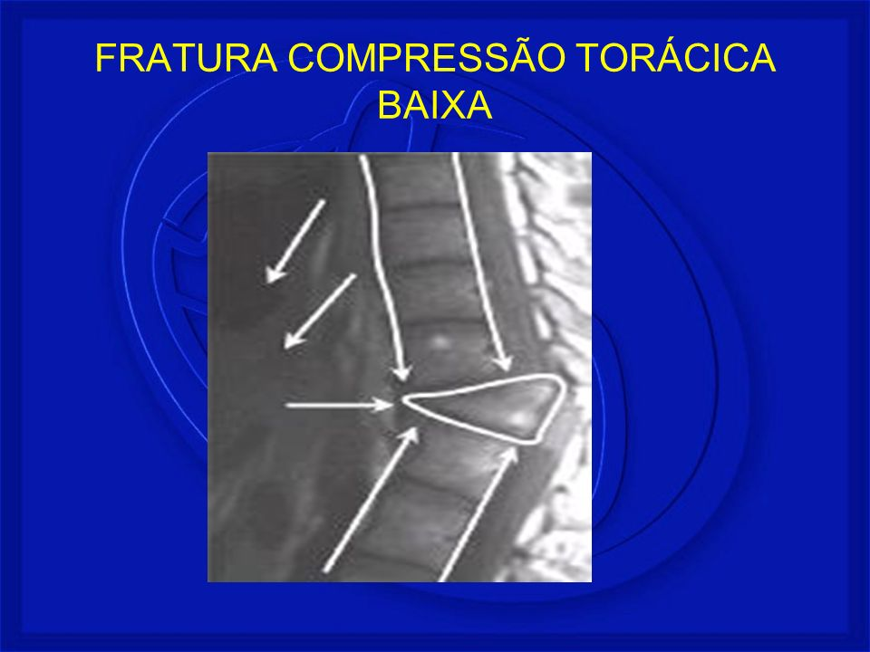 FRATURA COMPRESSÃO TORÁCICA BAIXA