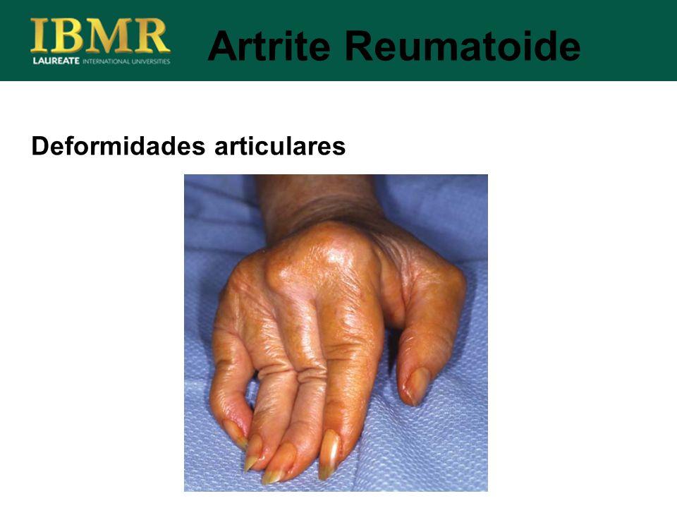Artrite Reumatoide Deformidades articulares