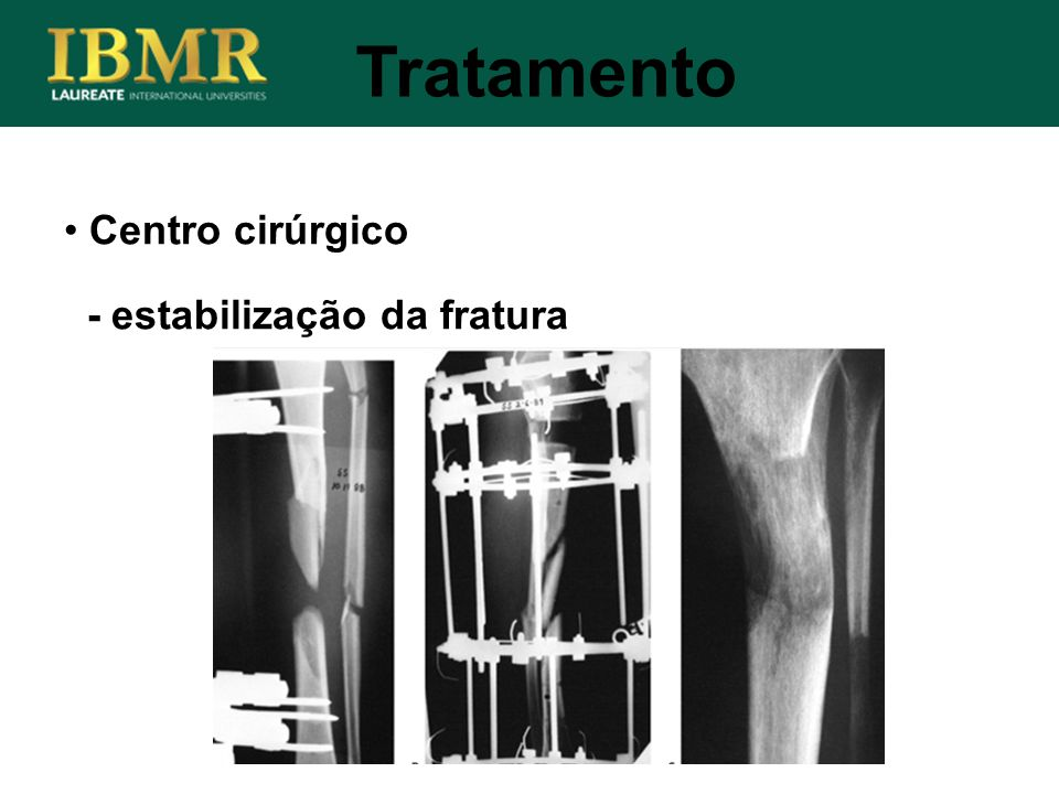 Tratamento Centro cirúrgico - estabilização da fratura