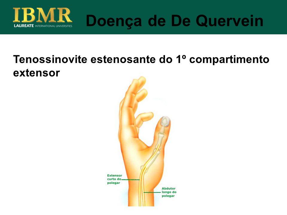 Doença de De Quervein Tenossinovite estenosante do 1º compartimento extensor