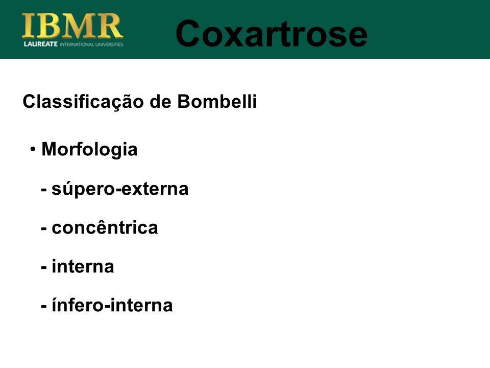 Coxartrose Classificação de Bombelli Morfologia - súpero-externa