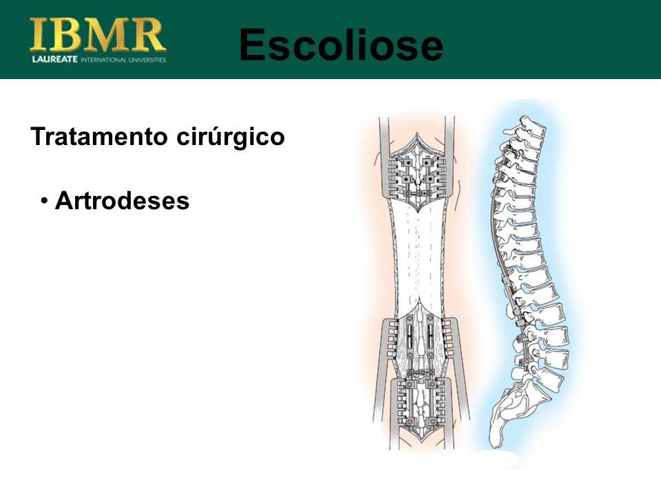 Escoliose Tratamento cirúrgico Artrodeses
