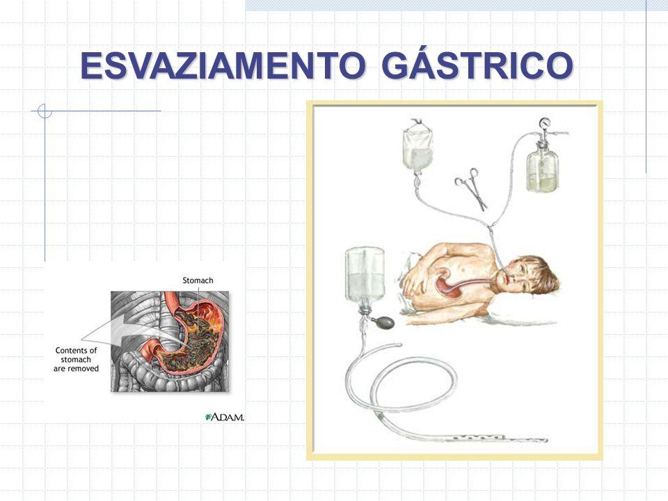 ESVAZIAMENTO GÁSTRICO
