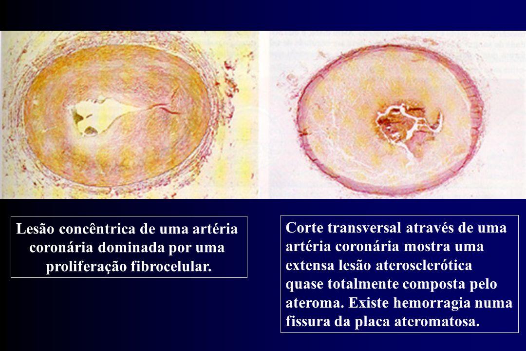 Lesão concêntrica de uma artéria coronária dominada por uma
