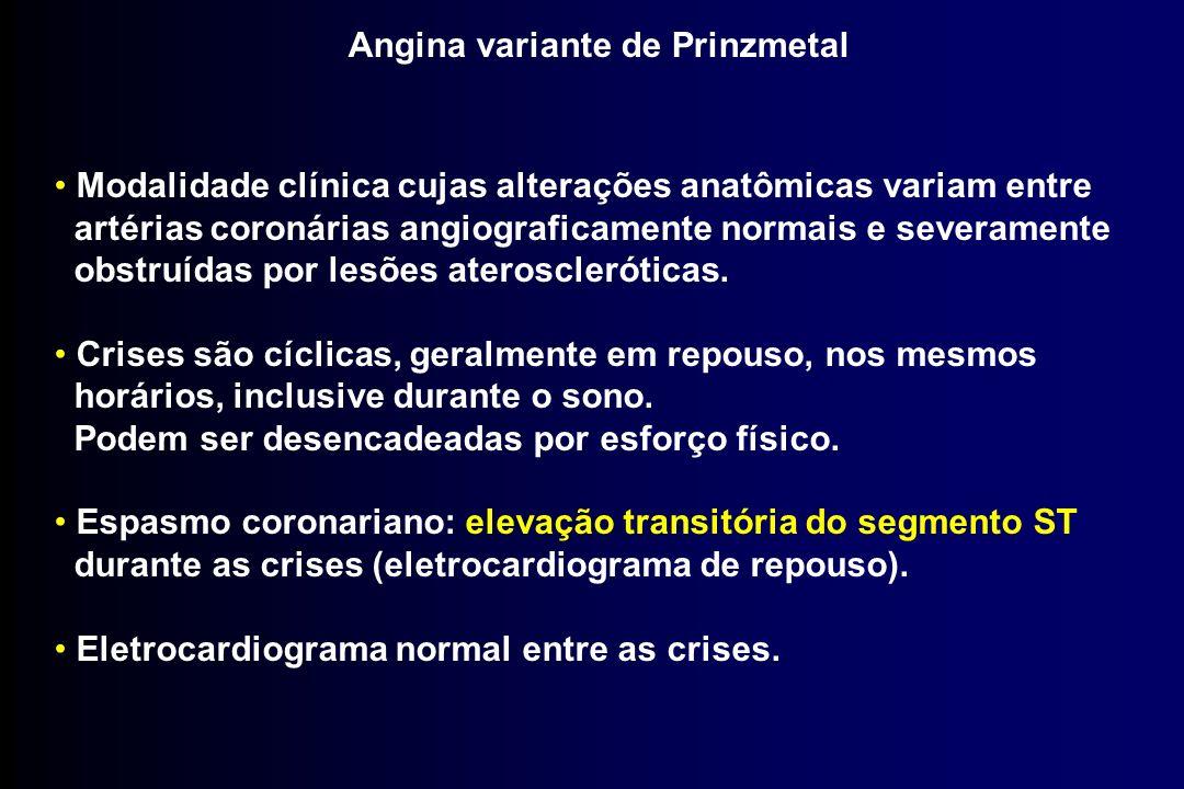 Angina variante de Prinzmetal