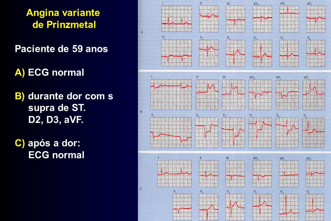 Angina variante de Prinzmetal. Paciente de 59 anos. A) ECG normal. B) durante dor com s. supra de ST.