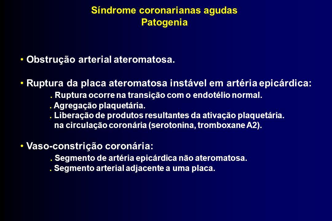 Síndrome coronarianas agudas