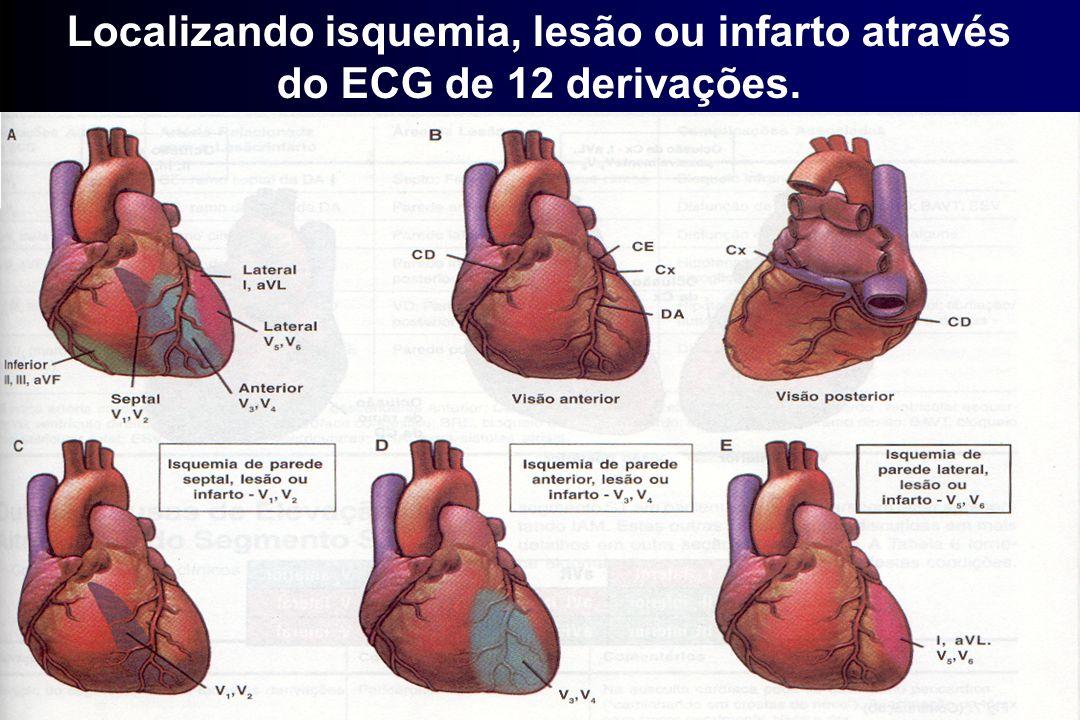 Localizando isquemia, lesão ou infarto através