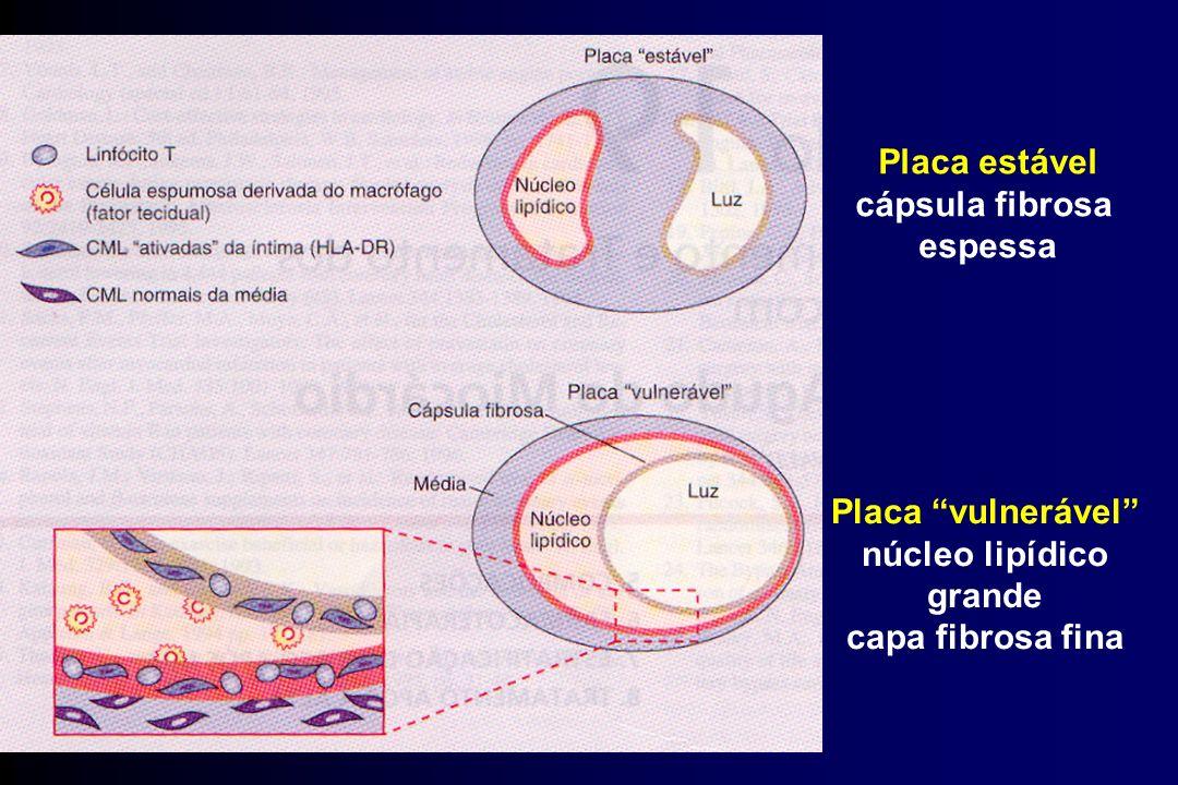 Placa estável cápsula fibrosa espessa Placa vulnerável núcleo lipídico grande capa fibrosa fina