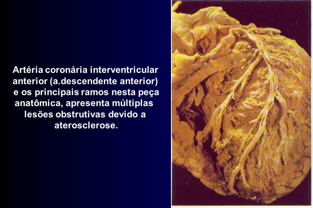 Artéria coronária interventricular anterior (a.descendente anterior)