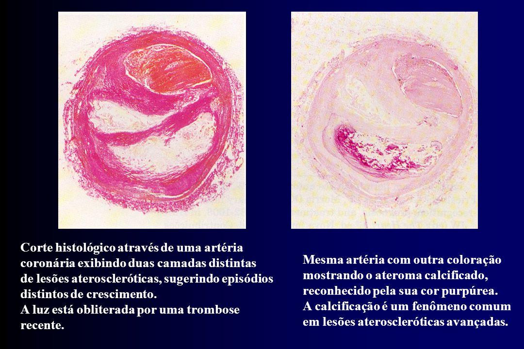Corte histológico através de uma artéria coronária exibindo duas camadas distintas