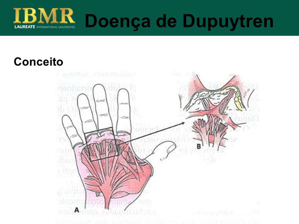 Doença de Dupuytren Conceito