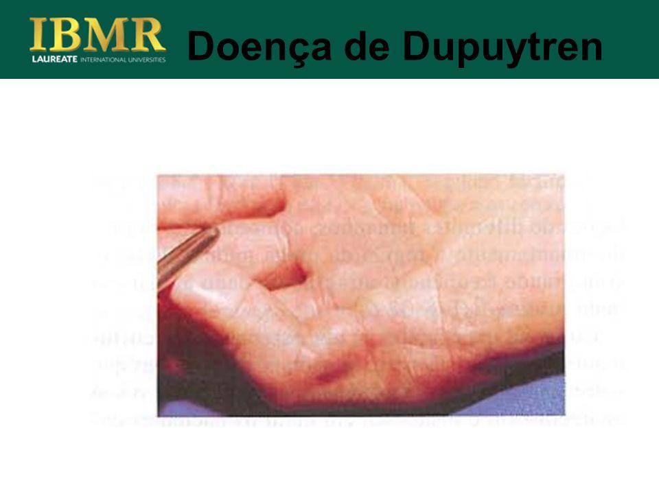 Doença de Dupuytren