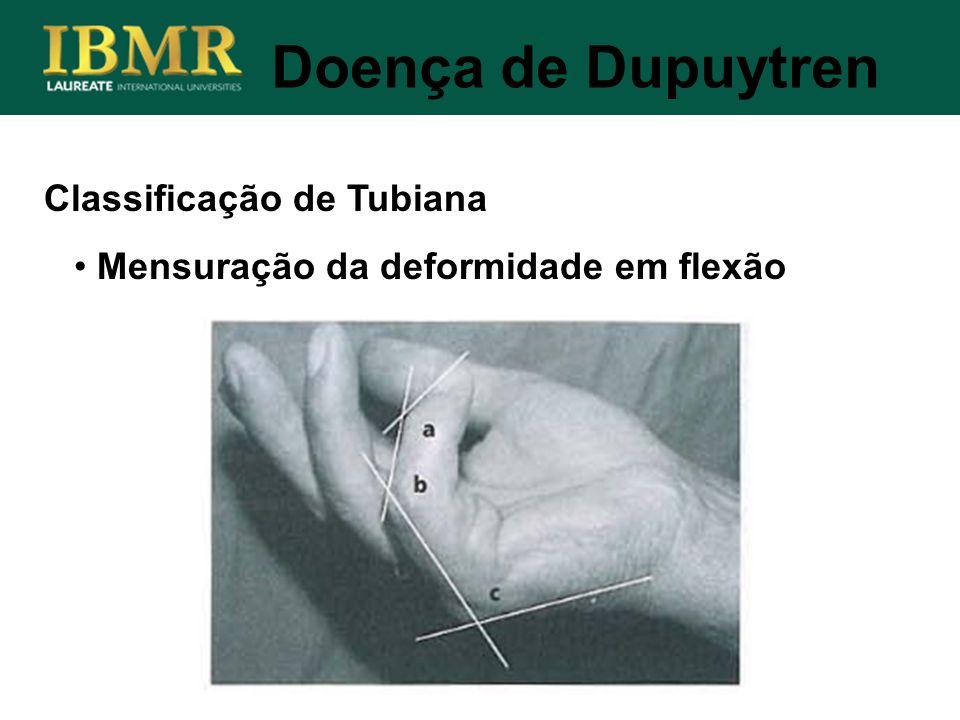 Doença de Dupuytren Classificação de Tubiana