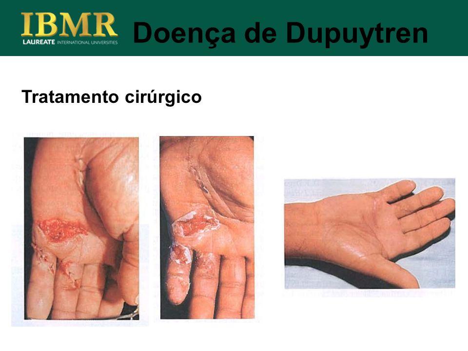 Doença de Dupuytren Tratamento cirúrgico