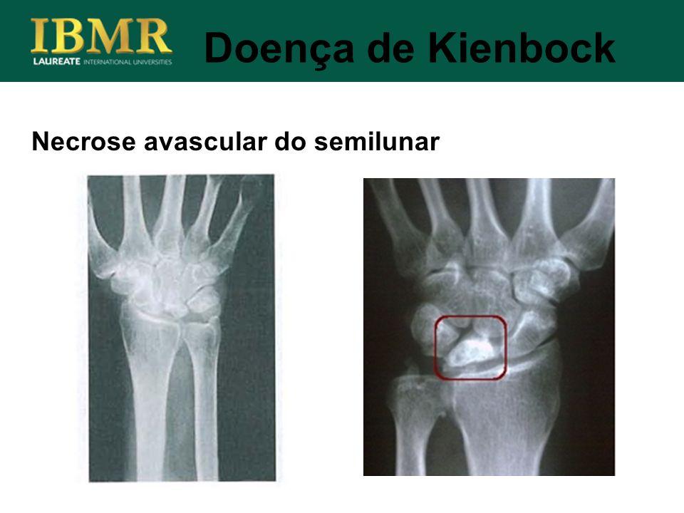 Doença de Kienbock Necrose avascular do semilunar