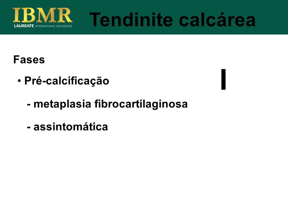 I Tendinite calcárea Fases Pré-calcificação