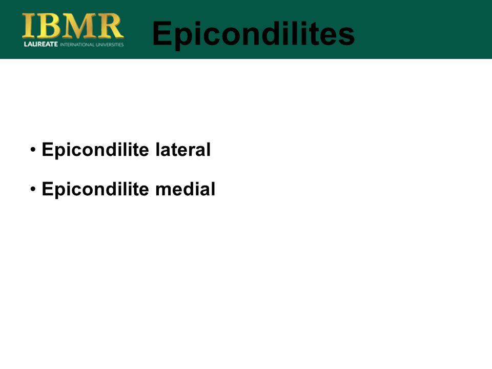 Epicondilites Epicondilite lateral Epicondilite medial
