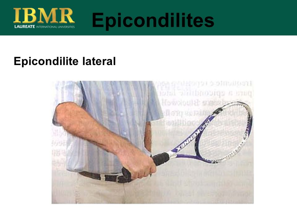 Epicondilites Epicondilite lateral