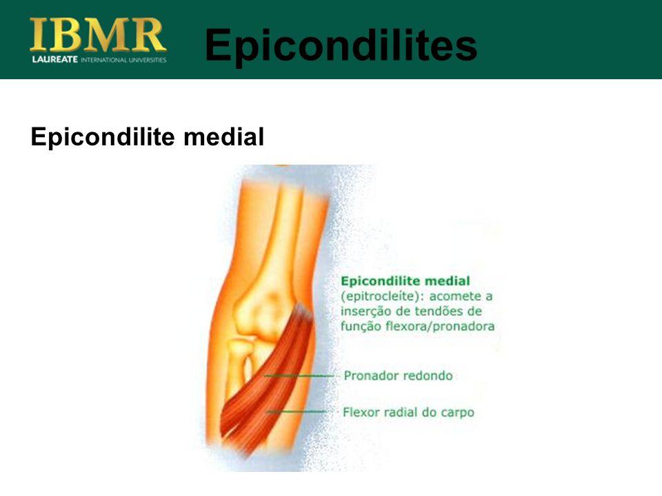 Epicondilites Epicondilite medial