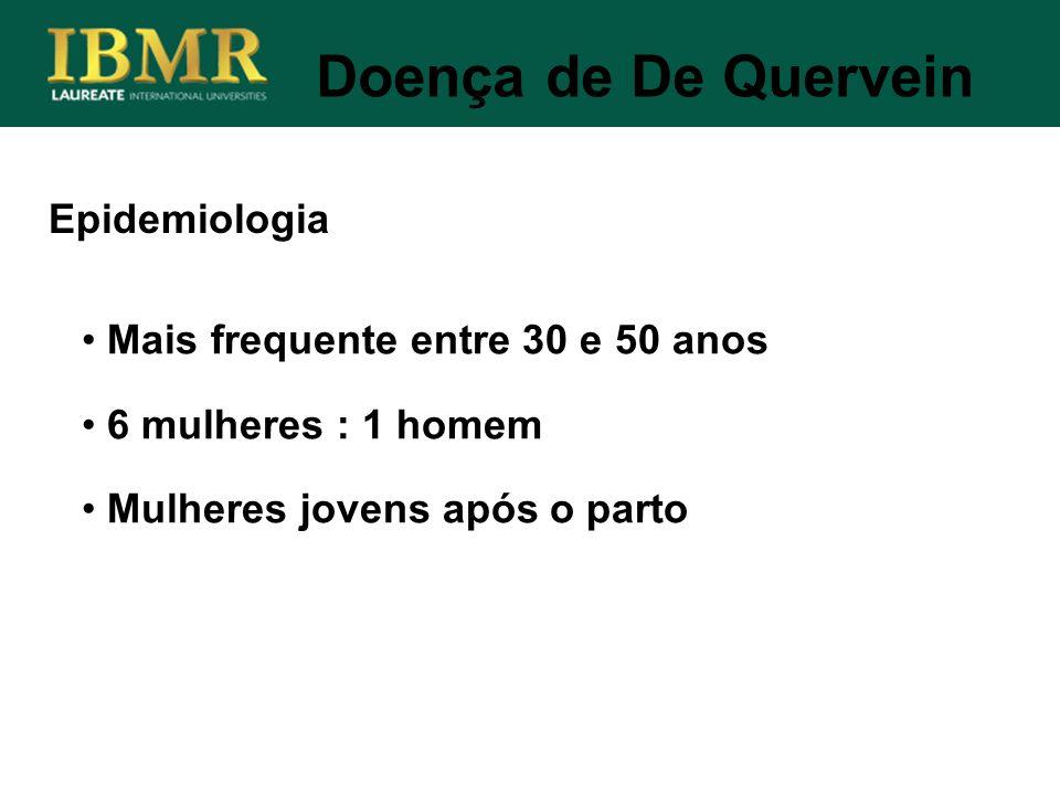 Doença de De Quervein Epidemiologia Mais frequente entre 30 e 50 anos