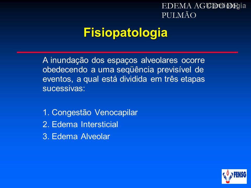 Fisiopatologia EDEMA AGUDO DE PULMÃO