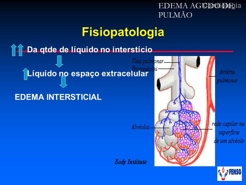 Fisiopatologia EDEMA AGUDO DE PULMÃO Da qtde de líquido no interstício