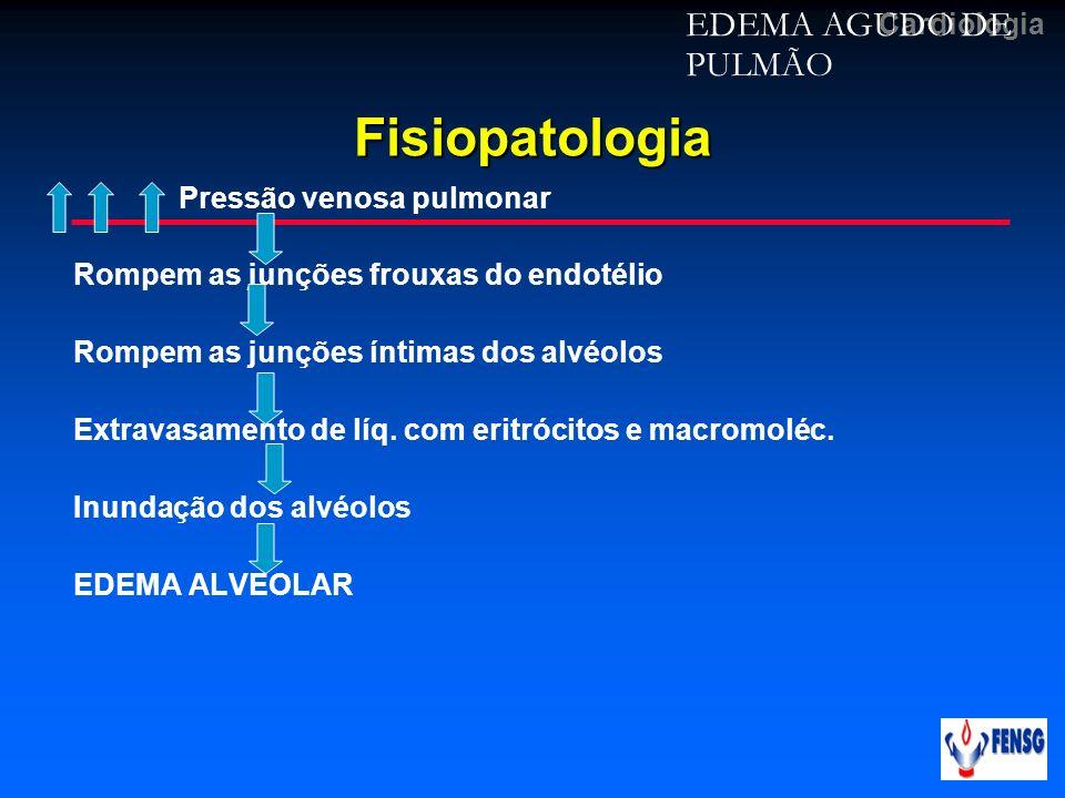 Fisiopatologia EDEMA AGUDO DE PULMÃO Pressão venosa pulmonar