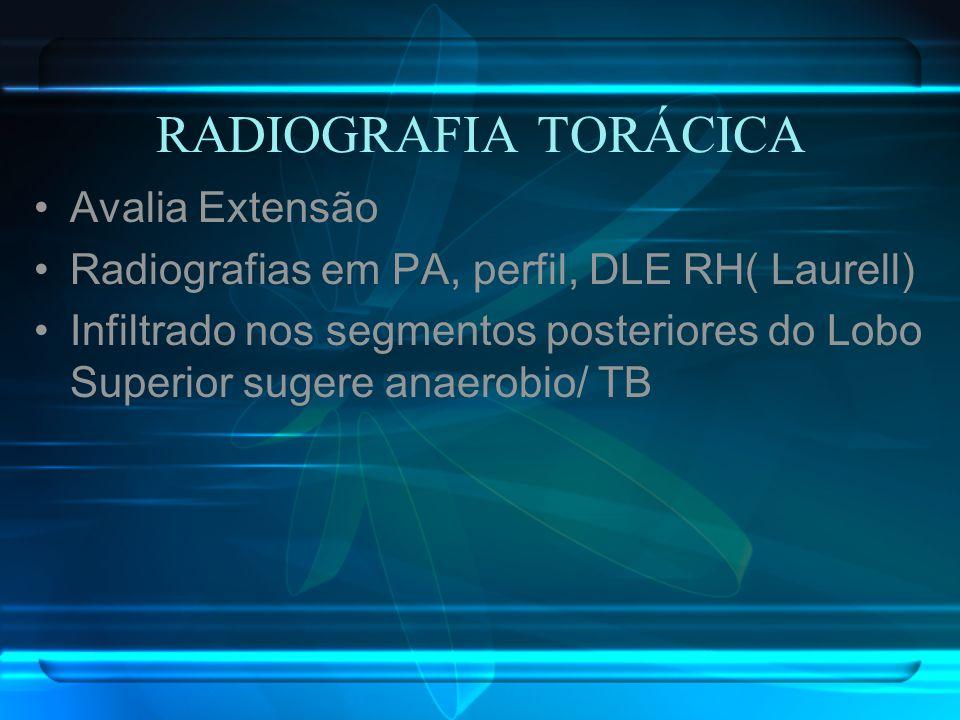 RADIOGRAFIA TORÁCICA Avalia Extensão