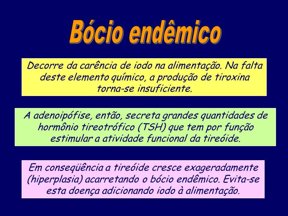 Bócio endêmico Decorre da carência de iodo na alimentação. Na falta deste elemento químico, a produção de tiroxina torna-se insuficiente.
