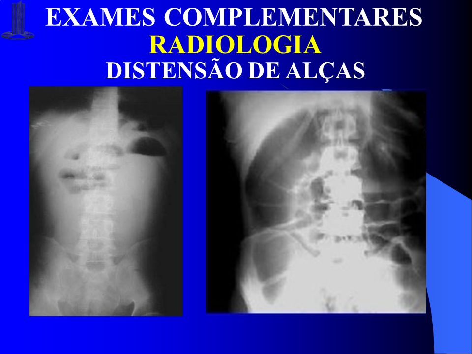 EXAMES COMPLEMENTARES RADIOLOGIA