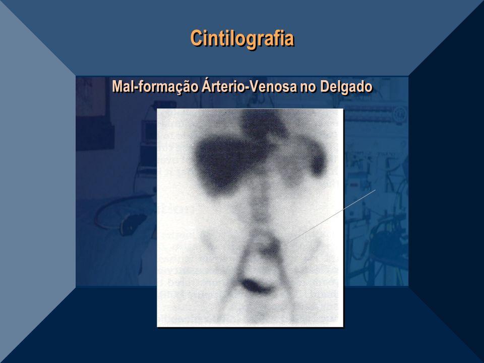 Cintilografia Mal-formação Árterio-Venosa no Delgado