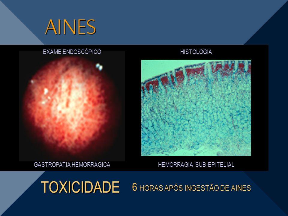 TOXICIDADE 6 HORAS APÓS INGESTÃO DE AINES EXAME ENDOSCÓPICO HISTOLOGIA