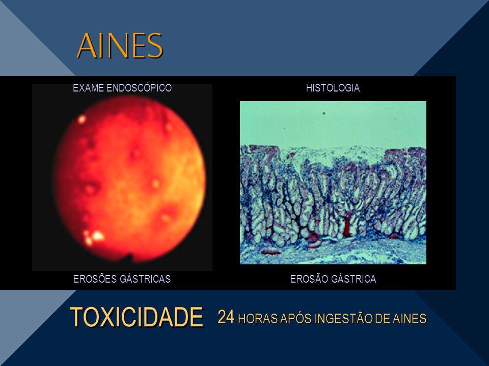 TOXICIDADE 24 HORAS APÓS INGESTÃO DE AINES EXAME ENDOSCÓPICO