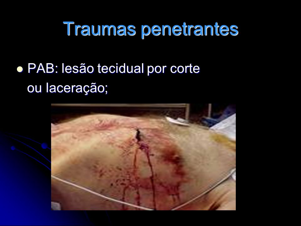 Traumas penetrantes PAB: lesão tecidual por corte ou laceração;