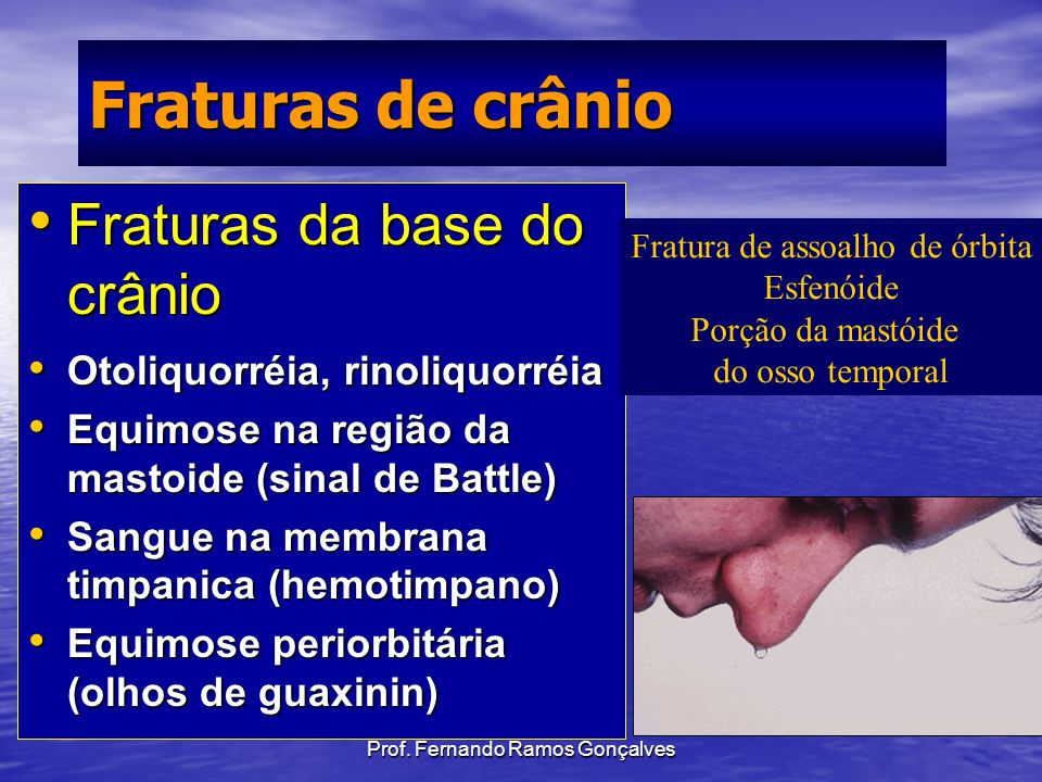Fraturas de crânio Fraturas da base do crânio