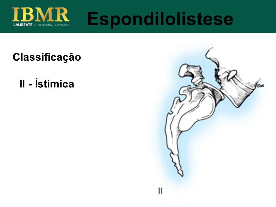 Espondilolistese Classificação II - Ístimica