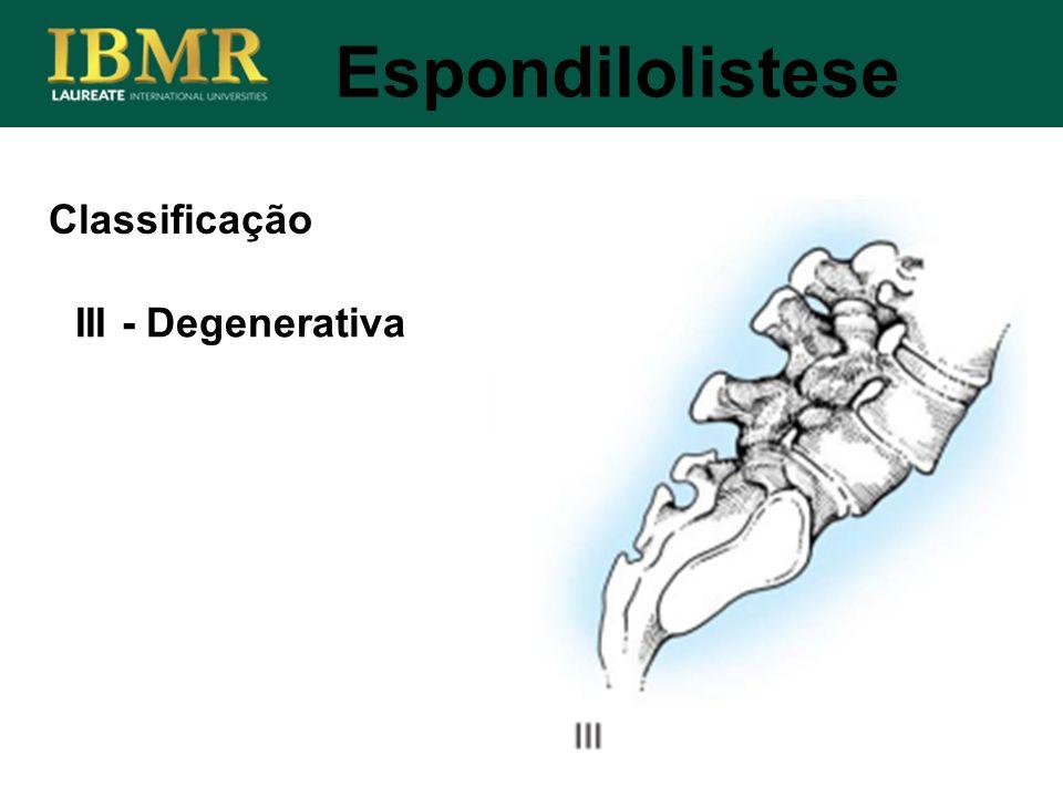 Espondilolistese Classificação III - Degenerativa