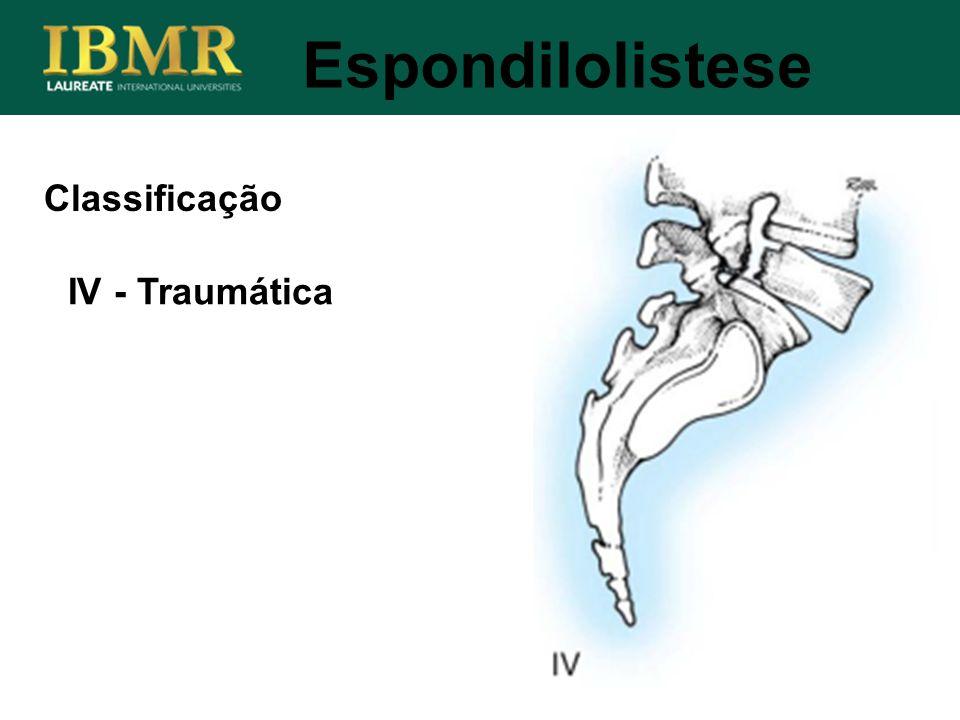 Espondilolistese Classificação IV - Traumática