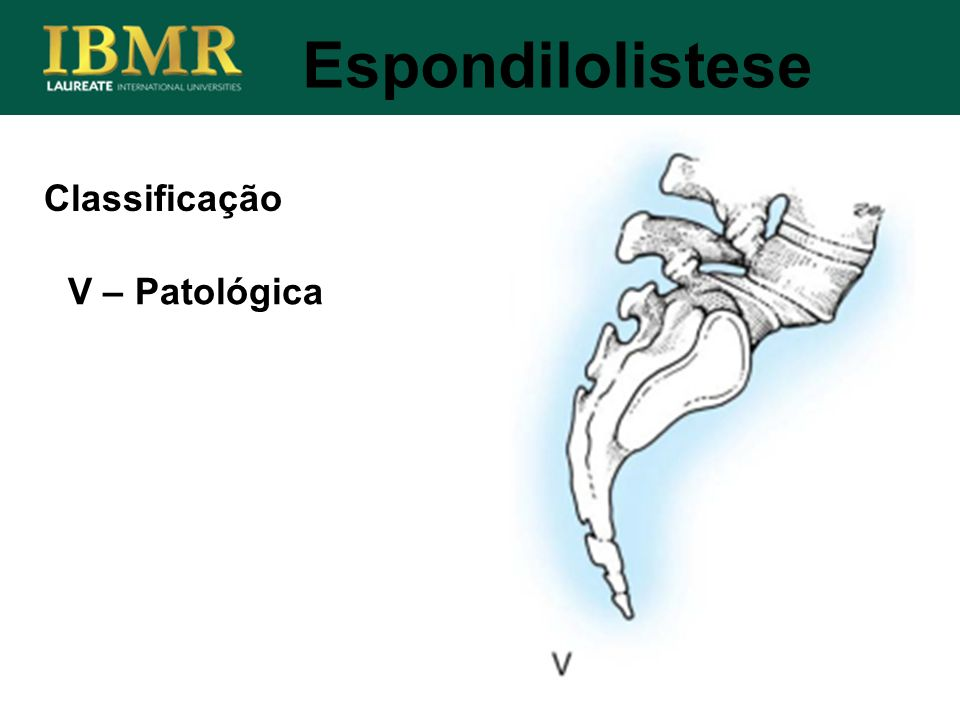Espondilolistese Classificação V – Patológica